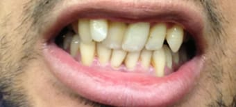 Before cosmetic Treatment Smile Rooms Kingston