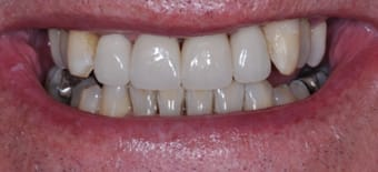 After Veneers Treatment sm:)e®