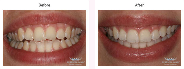 Six month smile before and after case 1 Kent