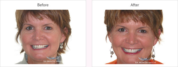 Six month smile before and after case 8 Kent