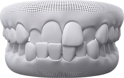 cross-bite teeth example