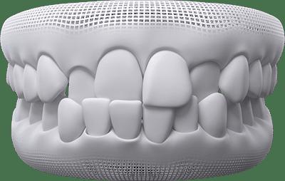 cross-bite teeth example