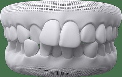 crowded teeth example
