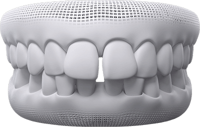 spaced and gapped teeth example