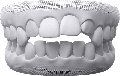 open-bite teeth example