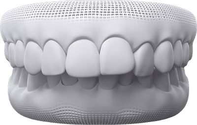 Overbite/overjet teeth example