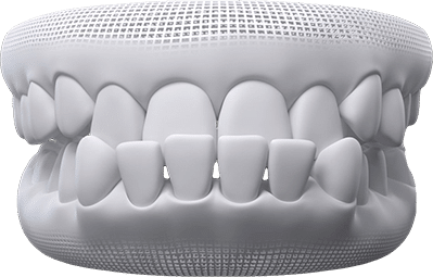 Underbite teeth example