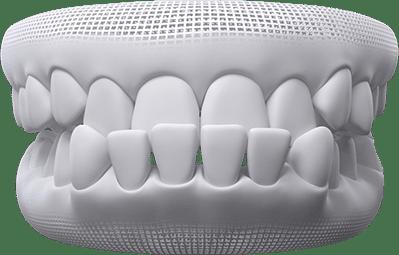 Underbite teeth example