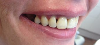 After Veneers Treatment Smile Rooms Kingston