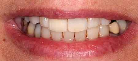 After cosmetic Treatment Smile Rooms Kingston