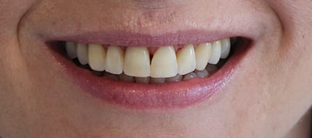 Gapped teeth after - smile kingston, kingston upon thames