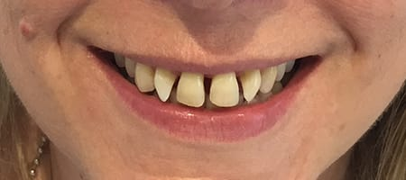 Gapped teeth before - smile kingston, kingston upon thames