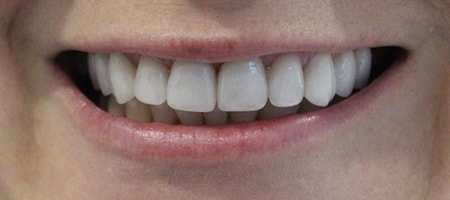 Before veneers Treatment Smile Rooms Kingston