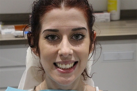 Before Smile Makeover Treatment sm:)e®
