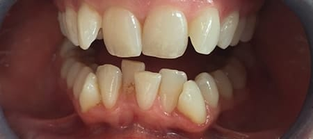 crowded teeth before Invisalign