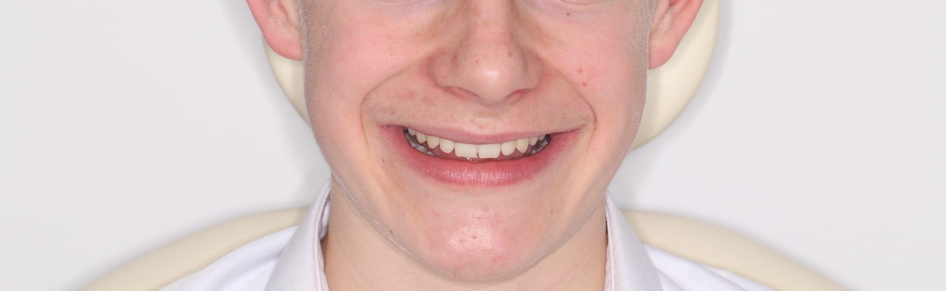 Ewan's final results from Invisalign braces