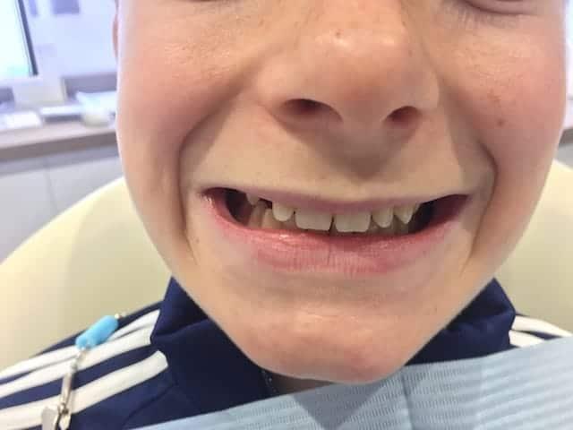 Ewan's teeth before Invisalign
